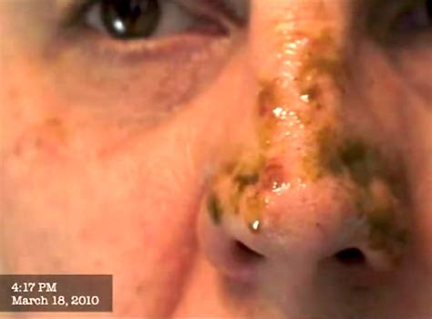 About My Skin Cancer by Cannabis Cured My Skin Cancer Reset Me