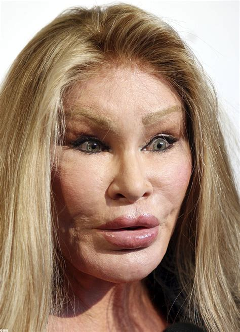who s sexier jocelyn wildenstein or amanda lepore