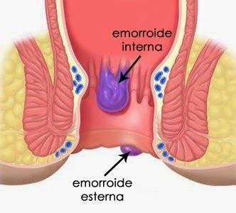 Uscita Di Sangue Dal Sedere by Emorroidi E Stitichezza Risolvere Senza Medicine L