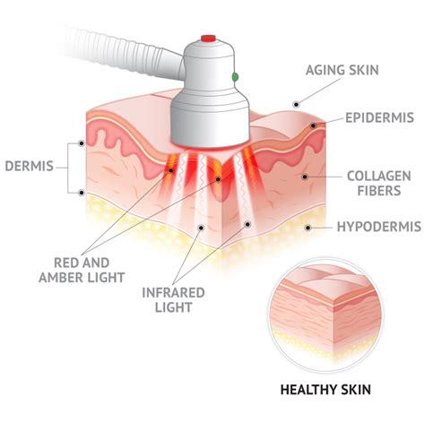my skin buddy light therapy quasar md plus four easy payments quasar bio tech