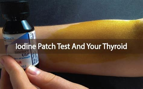 If You Do Not Detox From Iodine by Autoimmune Disease Iodine And The Iodine Patch Test