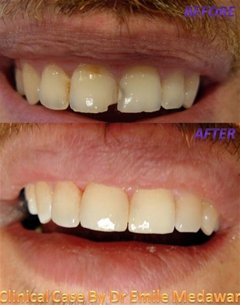 invisible composite fillings