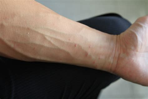 rash on inner arm the gallery for gt scabies rash on arms