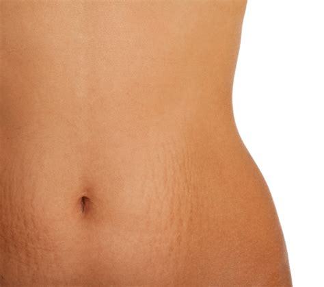 laser surgery laser surgery best effective removal of