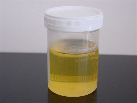 protein in urine primary health station cloudy foamy urine is it proteinuria
