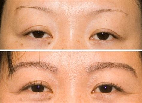 viviscal eyebrow before and after eyebrow hair loss causes and regrowth treatments knowfacts
