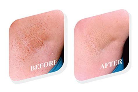 amazon com organic natural based razor bump ingrown tend skin the skin care solution for unsightly razor bumps