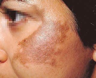 Melasma 5 In 1 dicas de beleza bianco st 250 dio melasma