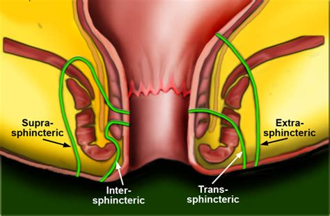 bawaseer disease piles fistula fissure tratamiento de f 237 stula rectal