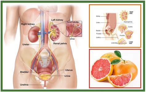how to treat urinary tract infections at home using