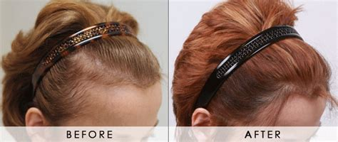 hairstyles for female pattern baldness female pattern loss scale beverly hills hair loss scale