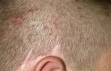 Can Blisters In And Hair Loss Be From Detox by Itchy Bumps On Scalp Neck Causes Hurts Pictures