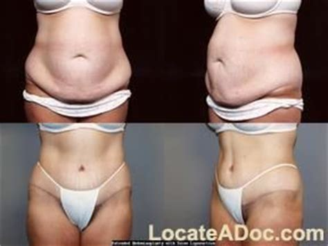 tummy flap after c section loss weight after c section gallery