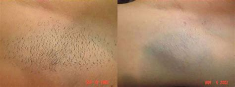 tattoo removal greenville sc non surgical advanced cosmetic surgery greenville sc