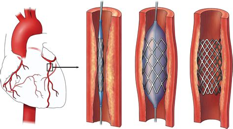 coronary angioplasty with or without stent implantation what you need to know about a heart stent central