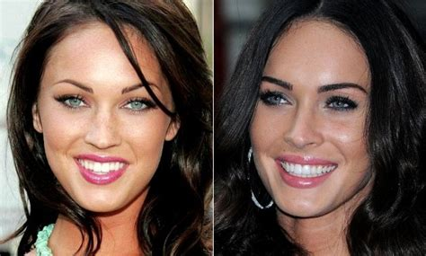 fakes miley cyrus selena gomez lindsay lohan etc poringa celebrity teeth before and after veneers traceybell