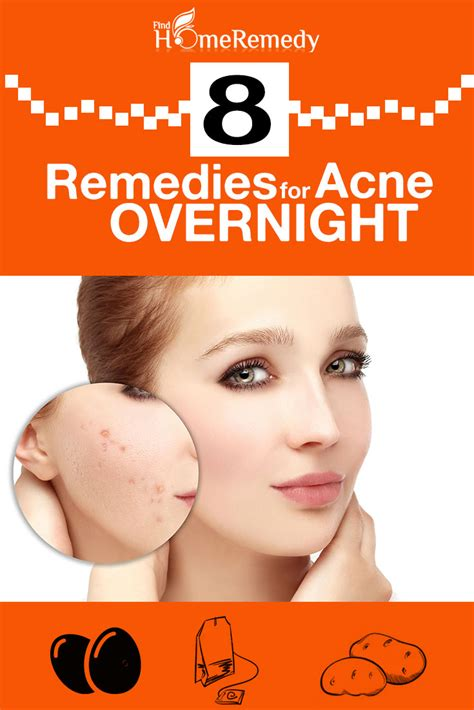 8 home remedies for acne overnight treatments