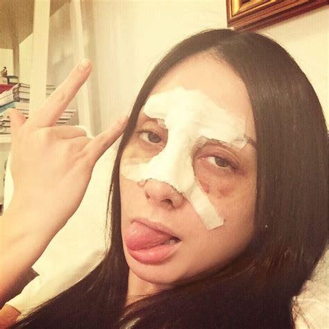 images tagged with frasicine on instagram ex bbb mostra rosto machucado ap 243 s acidente quebrei