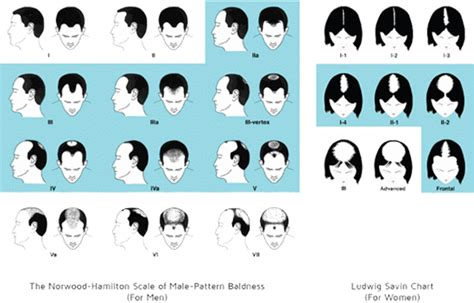 types of hair lines who suffers from hair loss advanced cosmetic cincinnati