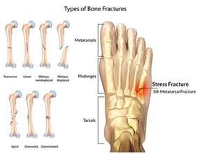 foot fracture treatment specialist 183 2016 top foot doctor