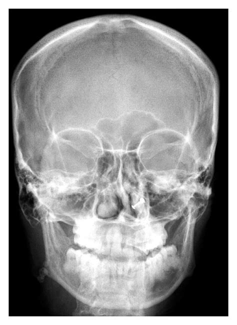 PA skull view showing the calcific structures in the right