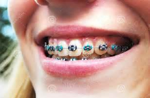 color braces orthodontic braces colors braces retainer
