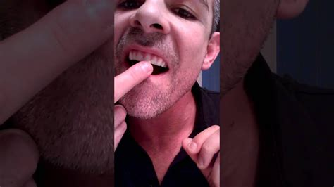 diy dental bonding fix your chipped tooth with diy tooth bonding