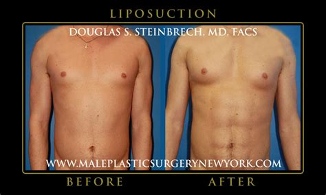 Did Banks Liposuction by Surgery Before After Pictures Nyc