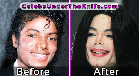 why are so many celebrities dying after chemotherapy 6 worst plastic surgery fails before and after photos