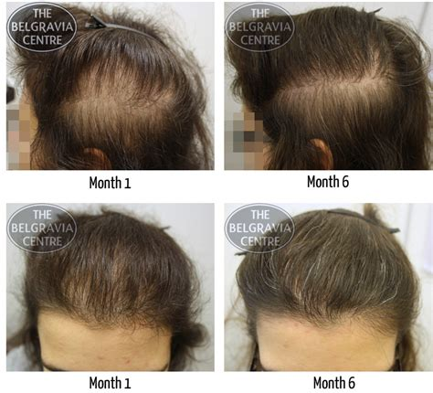 male hair loss pattern due to stress search results for women with male pattern balding hair