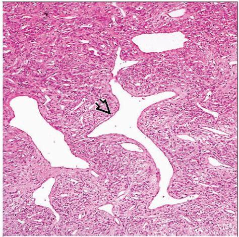 vascular pattern video hemangiopericytoma basicmedical key