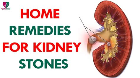 home remedies for kidney stones health best
