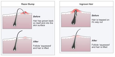 preventing ingrown hairs on neck after haircut the best and only ways to avoid razor bumps