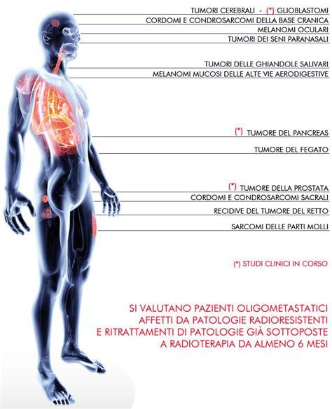 adroterapia pavia centro nazionale di adroterapia oncologica l adroterapia