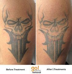 new tattoo laser removal this large piece is showing substantial fading after 3