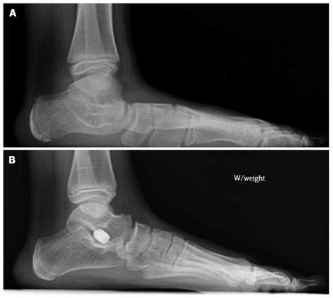Mba Implant Surgery Foot Problems by Equinovalgus Foot Pediatrics Orthobullets