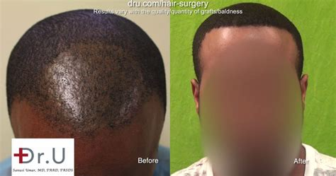 hair transplantation tools video best tool for fue hair transplant for black men