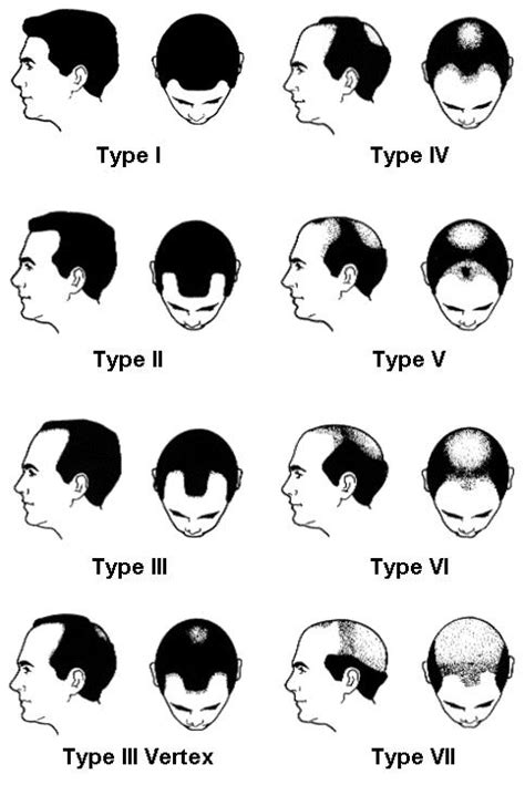 male pattern baldness numbers los angeles hair loss info