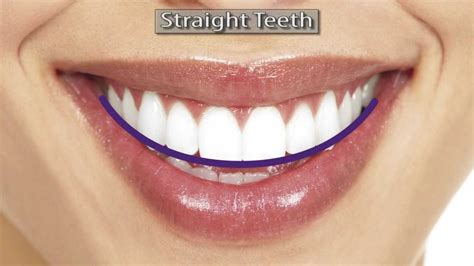 best braces damon braces clear damon braces best braces to get and