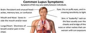lupus led lupus erythemateux dissemine lupus