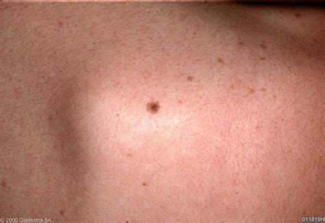 fibrous papule of the nose dermnet nz intradermal nevus pictures