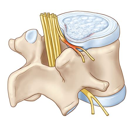 herniated disc diagram how to deal with sciatica brighthealing