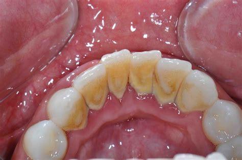 Scaler Pembersih Karang Gigi dental calculus meddic