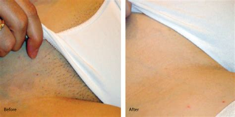 full brazilian wax photos before and after brazilian wax pictures before and after resume templates