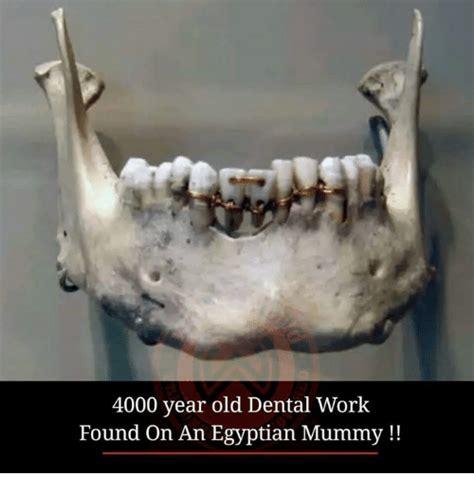 Dental Work Meme