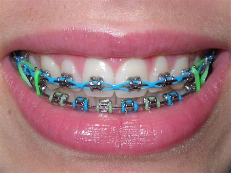 best 25 braces colors ideas on halter