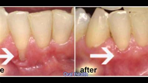 receding gums 12 05 2012