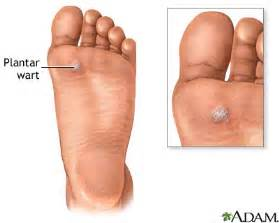 plantar foot warts verruca plantaris treatment causes