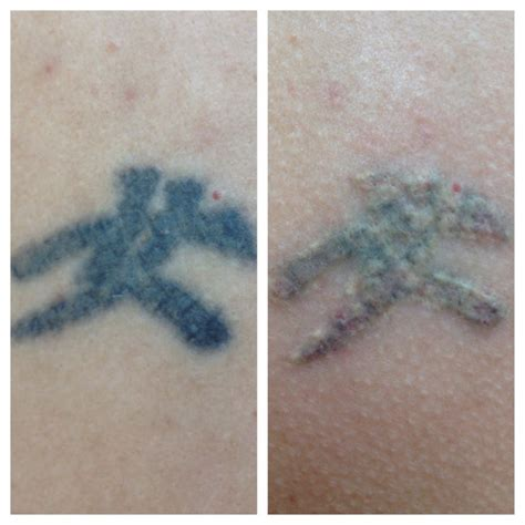 tattoo removal ohio mid ohio valley removal rejuvenation laser skin