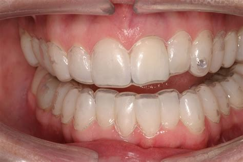 should i my teeth at home or in a dental office